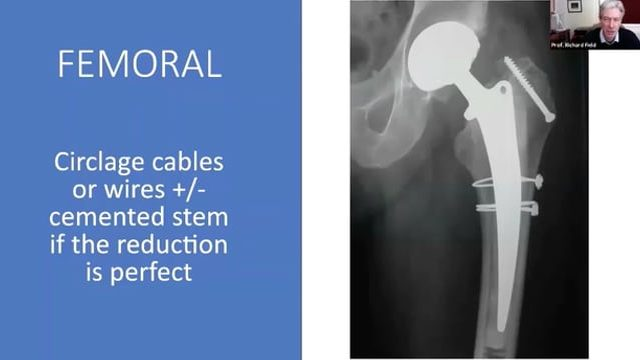 Anterior approach for hip arthroplasty – Ready to react, dealing with possible complications and other potential challenges